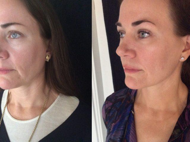 Soft lift på Skin Delight Clinic